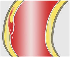 Rotura disección aorta - Casos médicos Galán Cortés