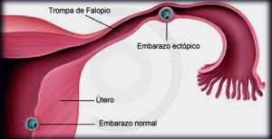 embarazo_ectopico_galan-cortes