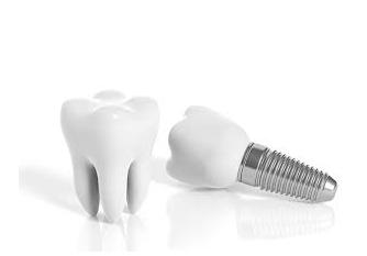 Negligencias En Odontología