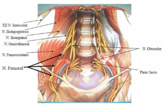 invalidez por plexopatia lumbosacra en cirugia de prostata